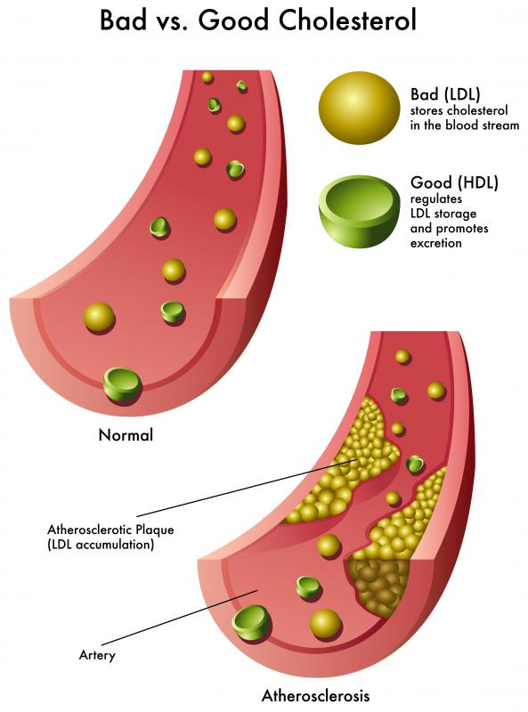 LDL cholesterol negatively impacts the body by accumulating in the arteries.