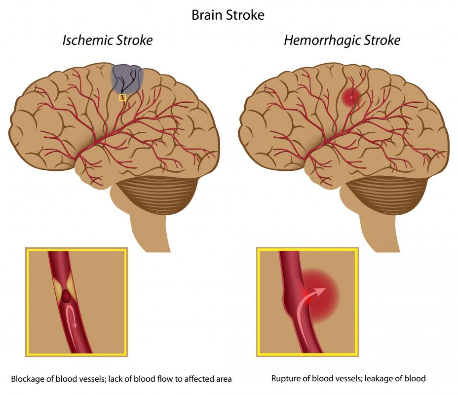 What Is The Difference Between An Aneurysm And Stroke