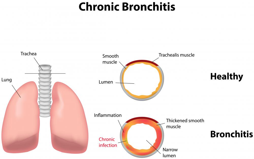 Co-trimoxazole may be prescribed to treat chronic bronchitis.
