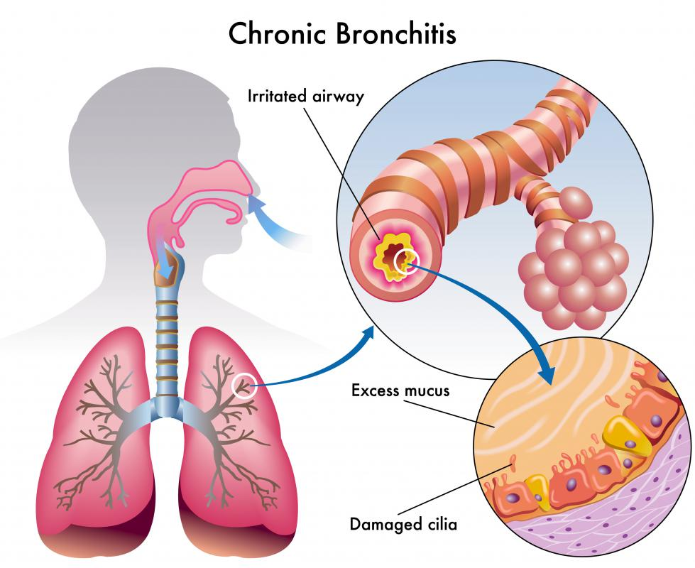 Common causes of a lung infection include bronchitis.