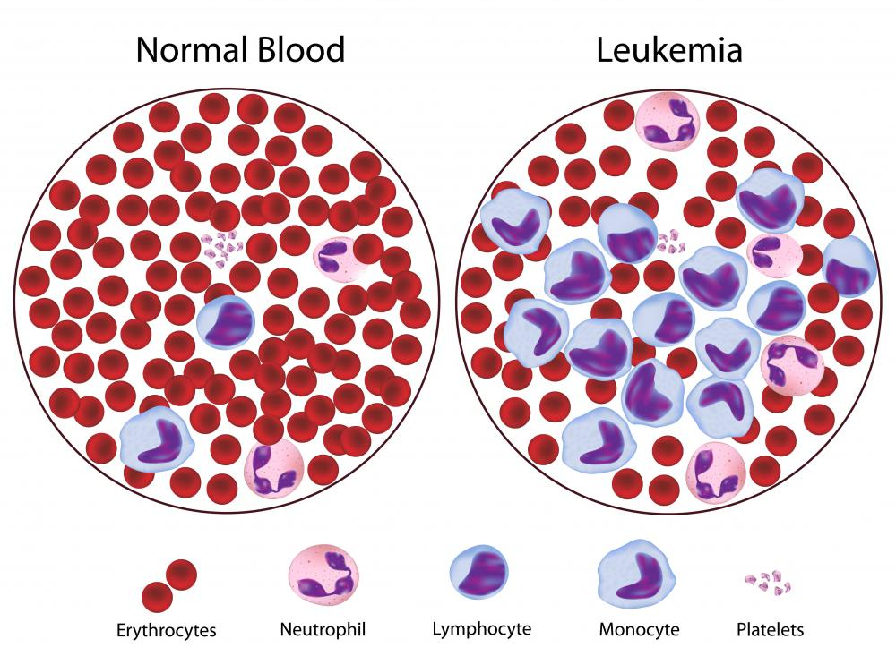 A diagram of normal blood and blood from someone with leukemia, which is sometimes treated with chemotherapy.