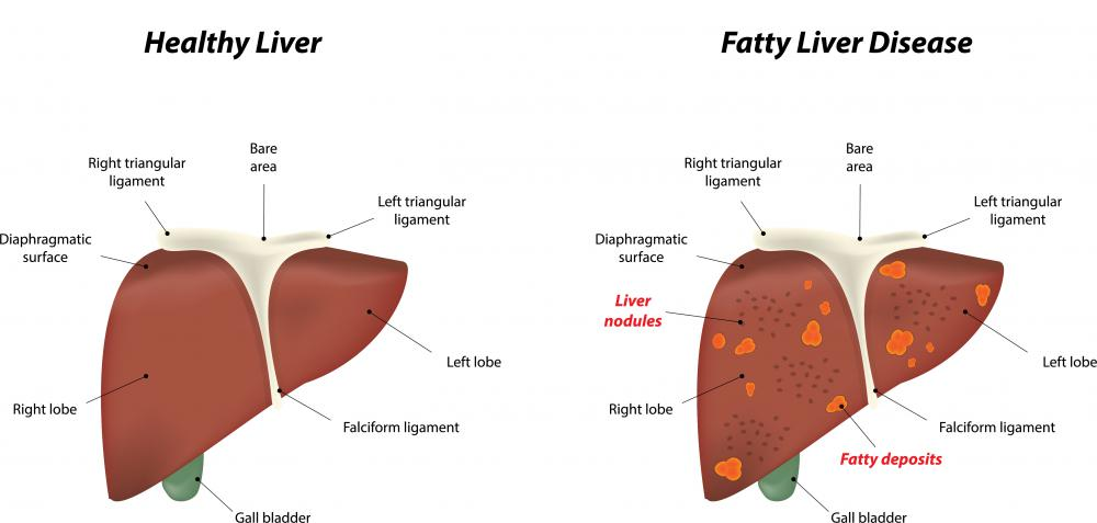 Someone with lipodystrophy often develops a fatty liver.