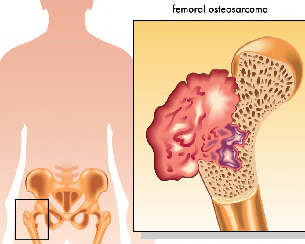 Osteosarcoma is the most common of the primary types of bone cancer.