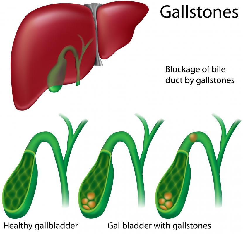 What are Gallbladder Adhesions? (with pictures)