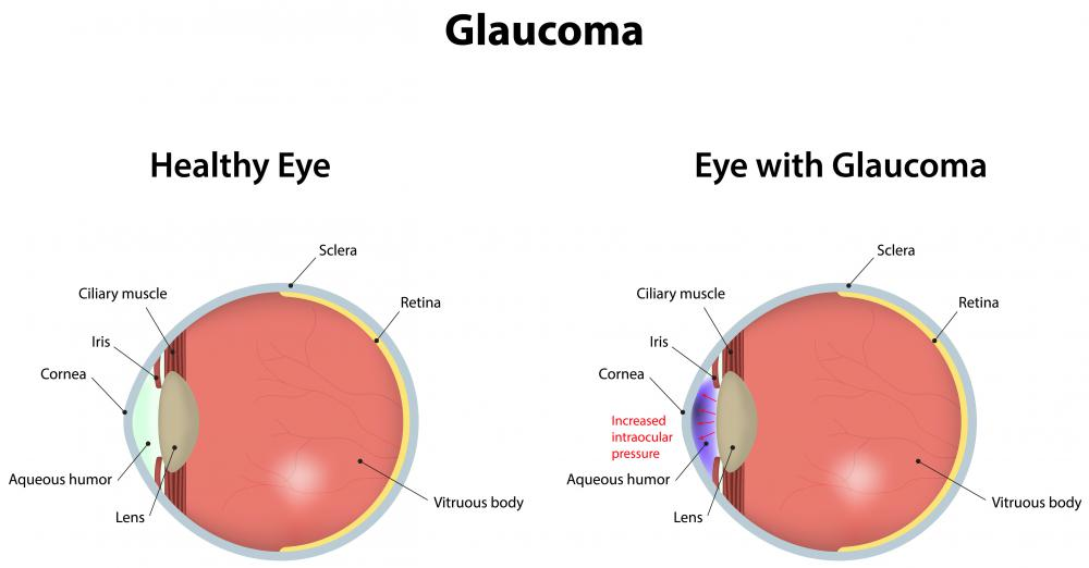 The development of glaucoma is possible with FHI.