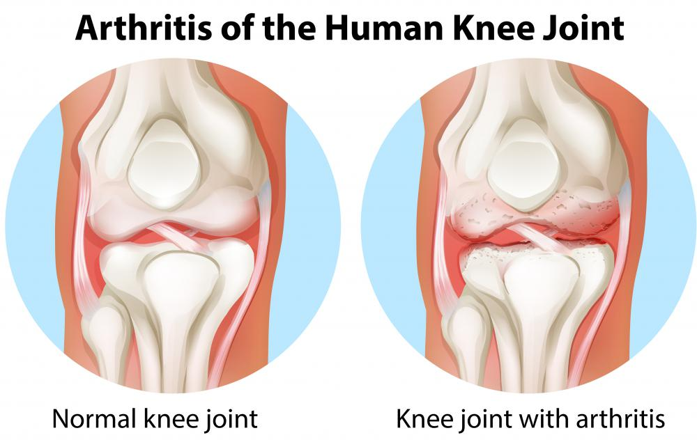 A J brace may be recommended for knee conditions that have been caused by arthritis.