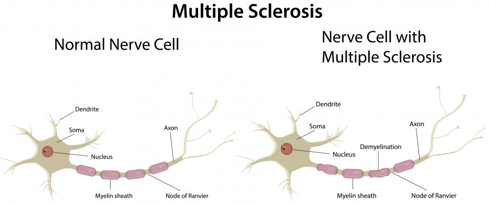 The inflammatory reactions associated with multiple sclerosis may cause axon damage and degeneration.