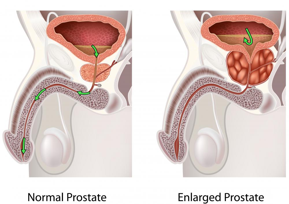 An enlarged prostate may cause an atonic bladder.