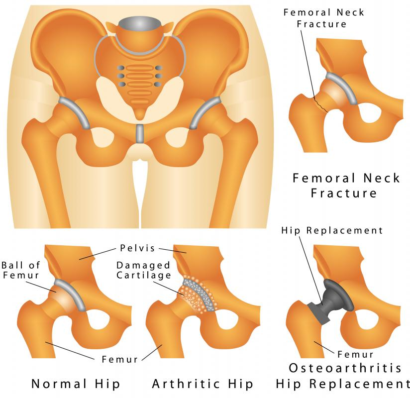 what are causes of bilateral hip pain with pictures  : hip pain diagram - findchart.co