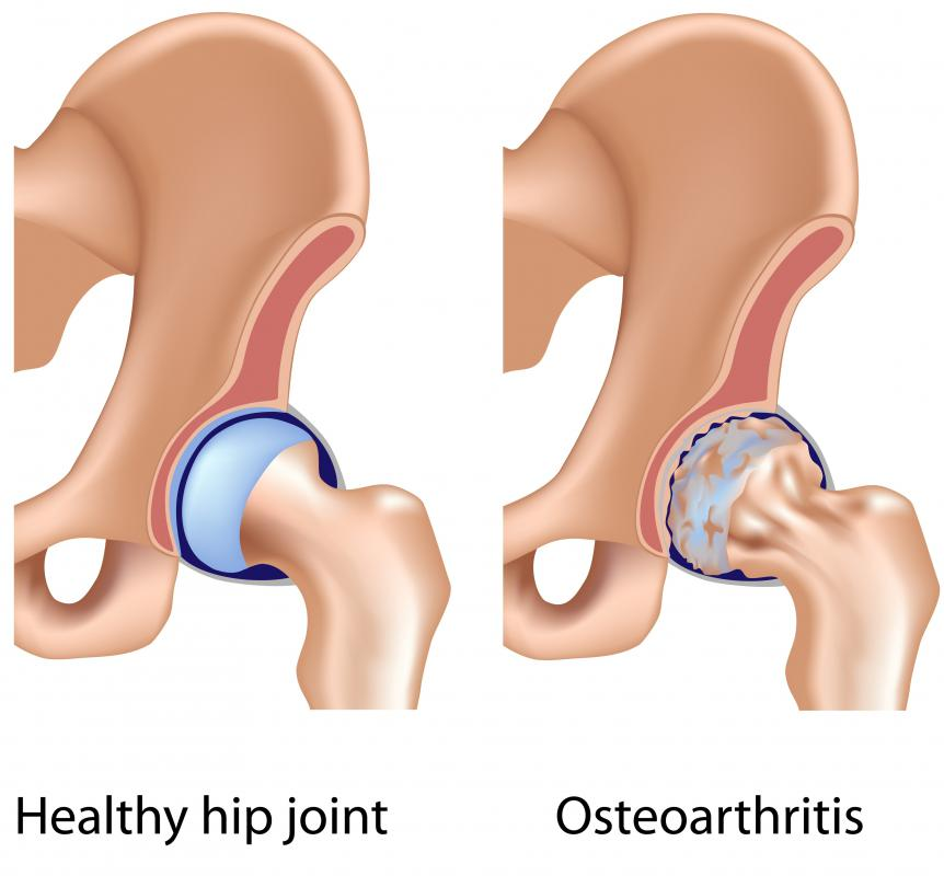 What Is A Hip Cyst With Pictures