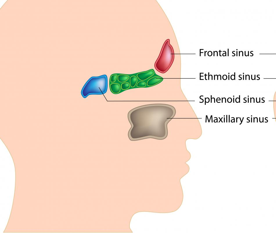 Inflammation of the paranasal sinuses might require sinusotomy.
