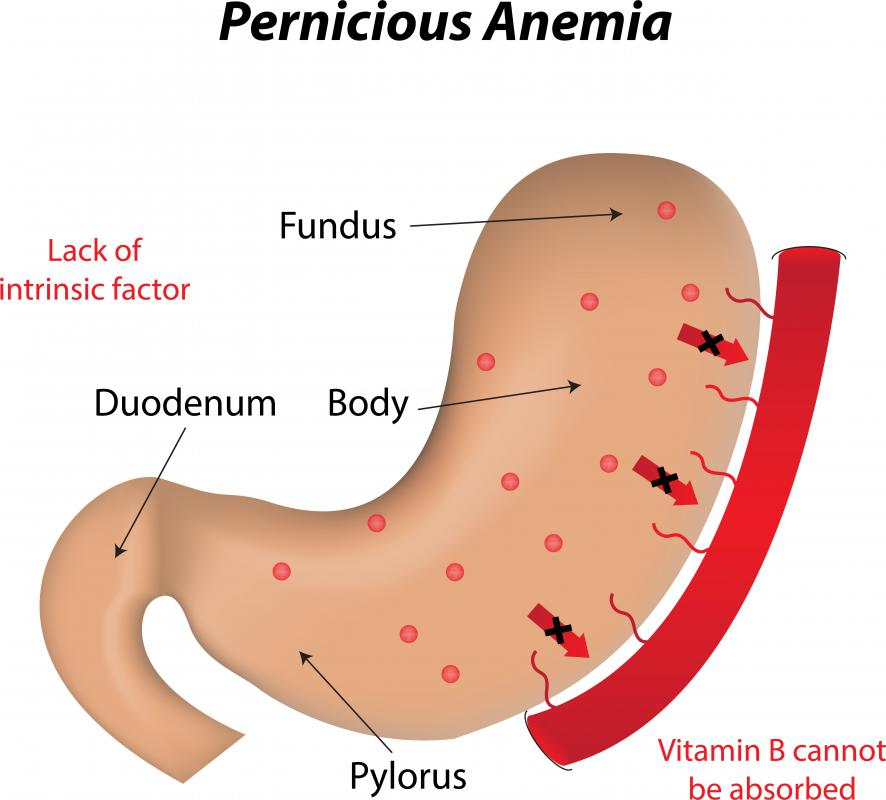 what is pernicious anemia? (with pictures), Skeleton
