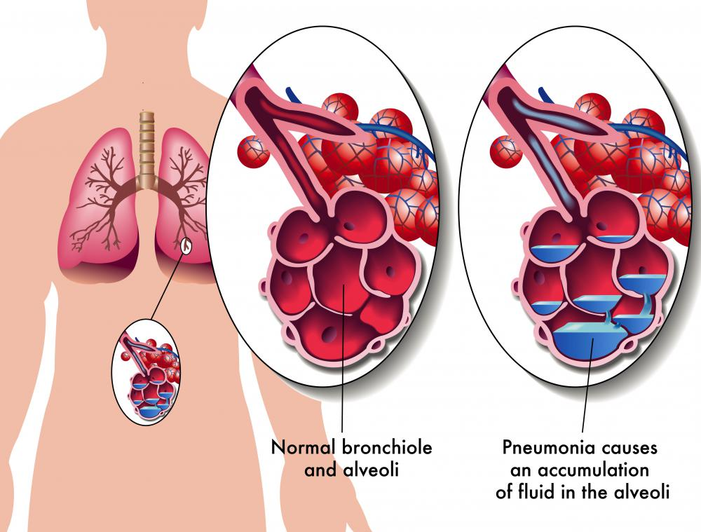What is the bronchial tree with pictures an accumulation of fluid in the alveoli may occur as a result of pneumonia ccuart Images
