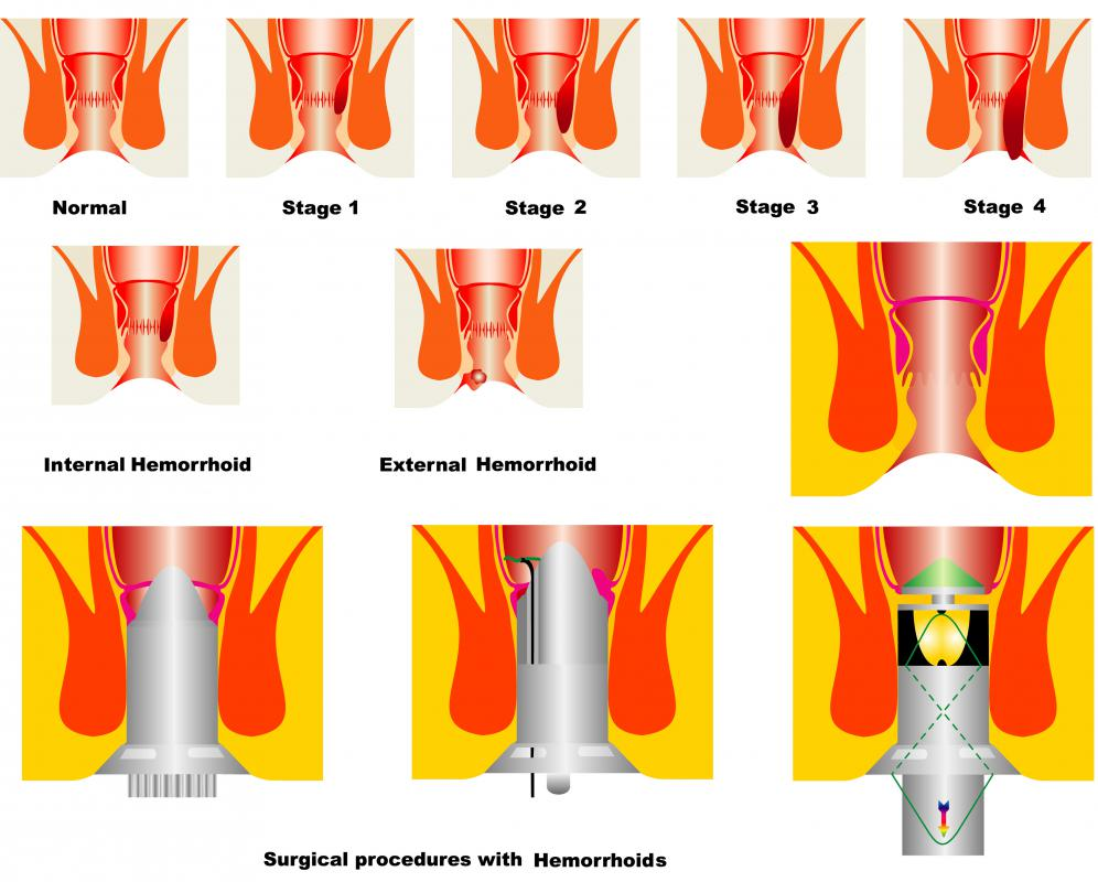 Anal stenosis may occur as a result of aggressive hemorrhoid surgery.