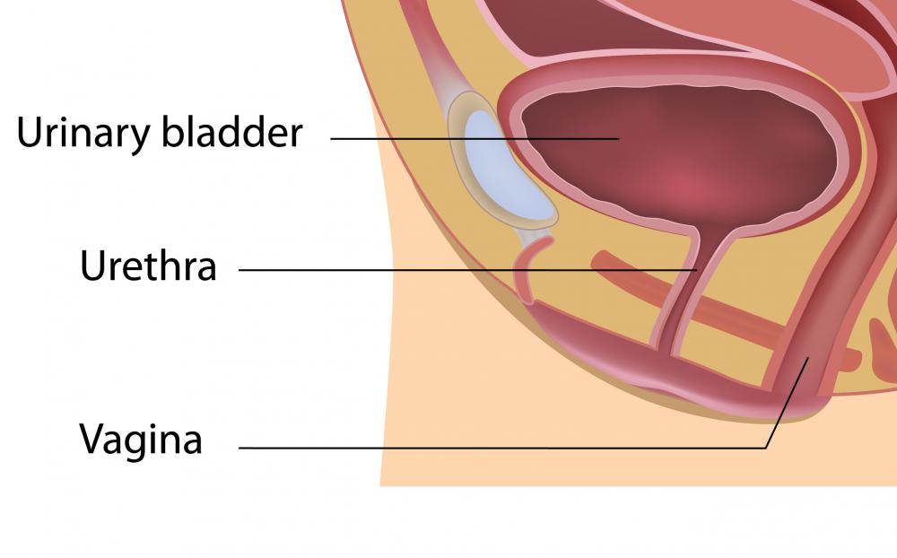 A cystoscopy entering through the urethra may be used to retrieve a ureteral stent.