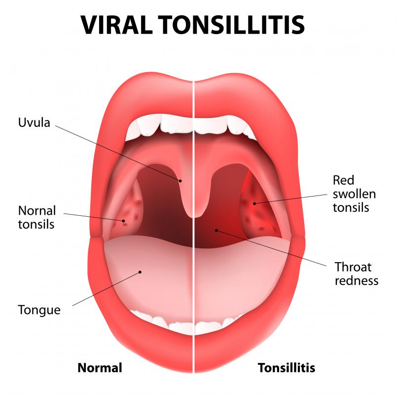 Tonsillitis can cause white tongue blisters to form.
