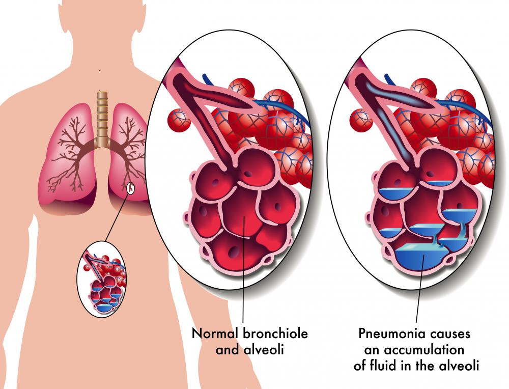 One of the effects of pneumonia is fluid-filled alveoli in the lungs.