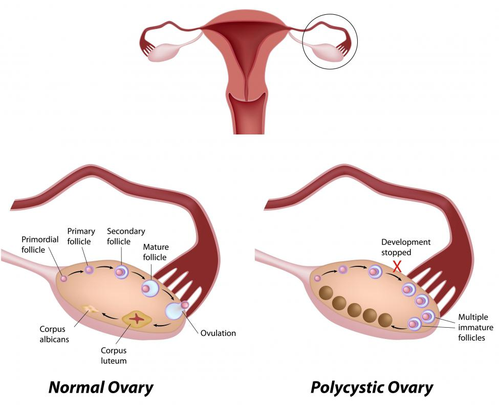 A healthy ovary and one from a woman with PCOS.