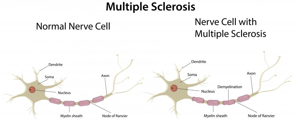 Dyskinesia can be caused by multiple sclerosis.