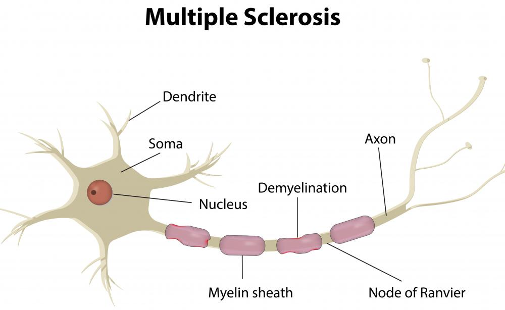 Interferon therapy is common in treating multiple sclerosis and other conditions.