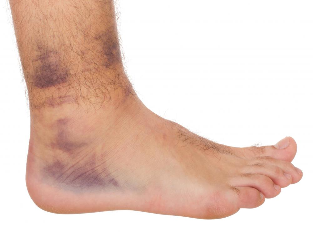 Swelling and discoloration of the foot may be indicative of a blood clot.