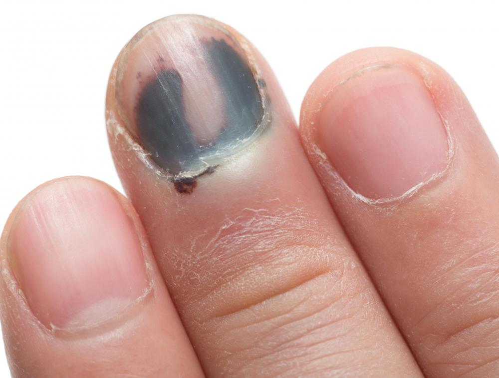 Discolored Nails May Occur As A Result Of Onycholysis