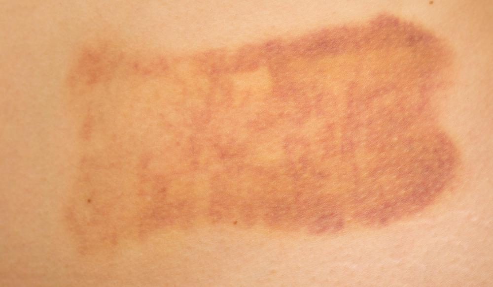 how to clear rash under armpit