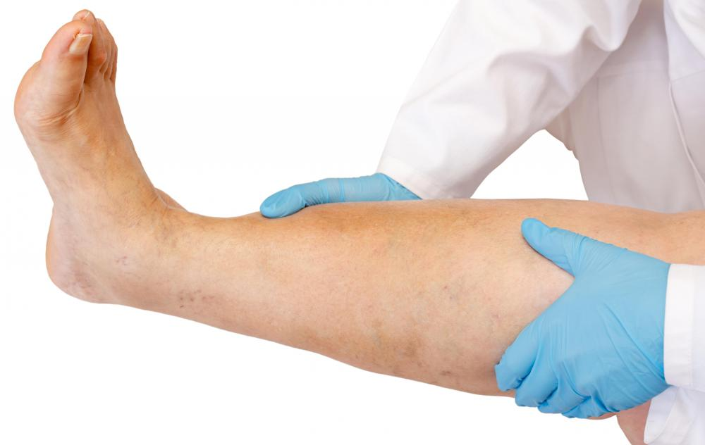 A swollen vein may require medical treatment.