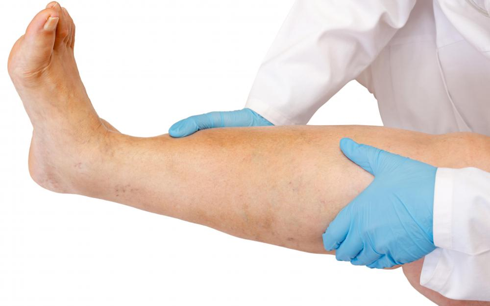 Problems with the lymphatic system may result in leg swelling.