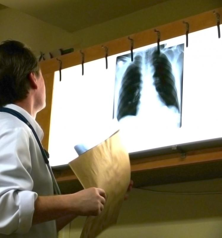 Doctors use chest X-rays to determine the cause of lung collapse.