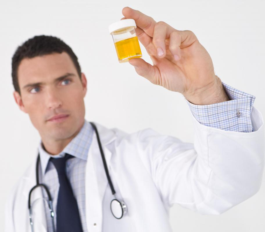 A urinalysis is performed to detect blood in the urine.