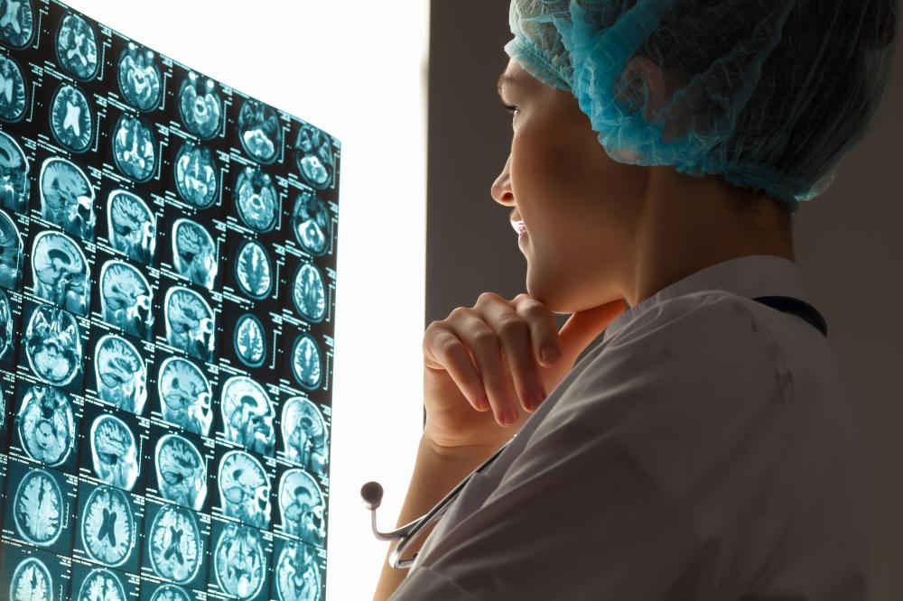 Medical imaging is helping improve understanding and treatment of brain diseases.