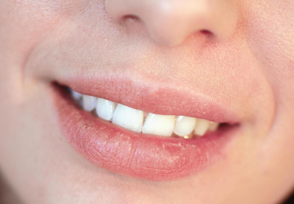 A sugar lip treatment can help with chapped lips.
