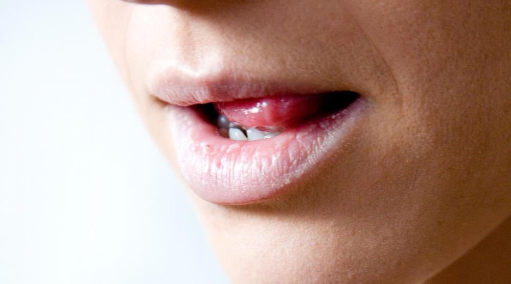 Excess saliva usually is a temporary problem.