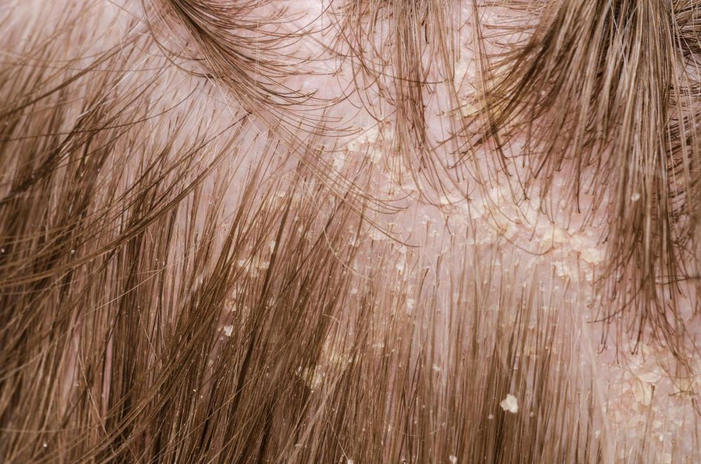 Urea lotions may be used to treat dry scalps.