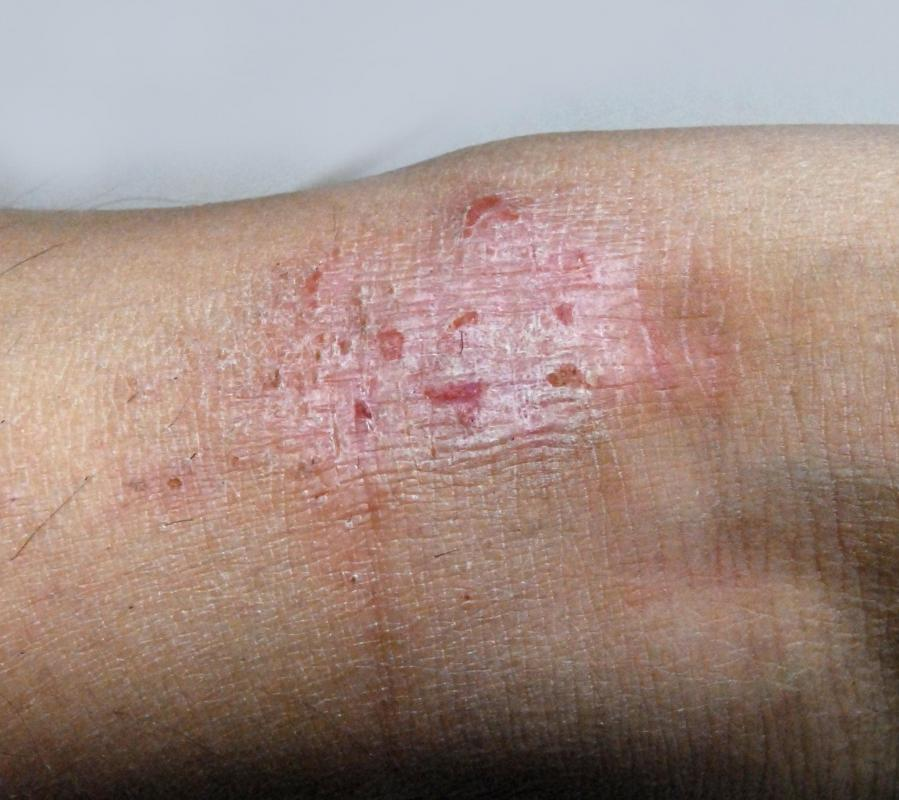 Topical anesthetics may be helpful in relieving pain associated with eczema.