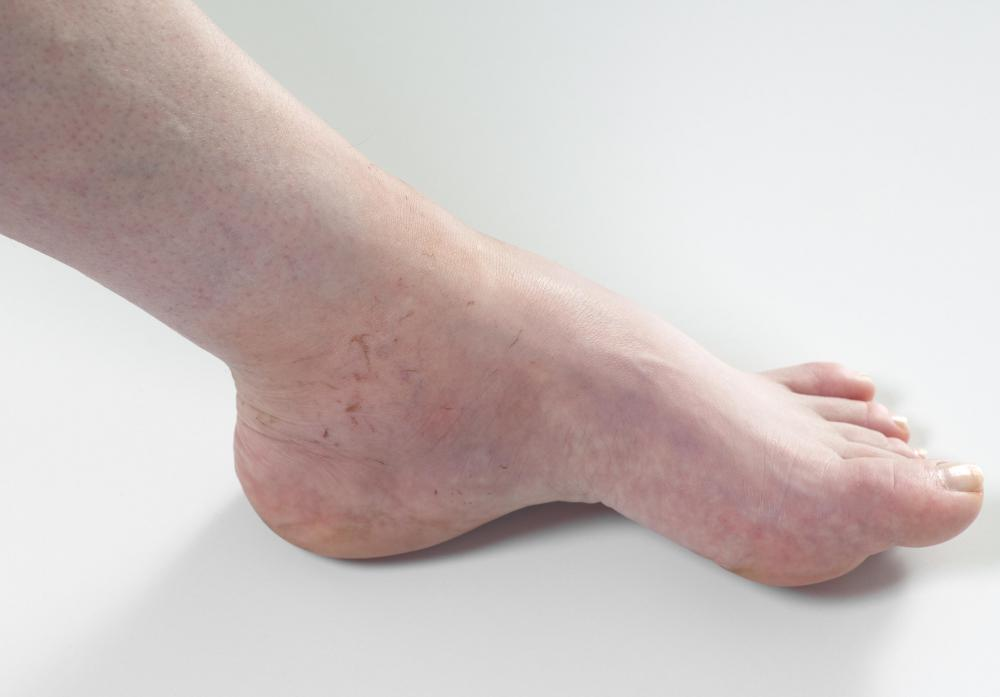 A person with painful swollen feet.