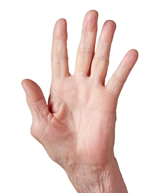 A hand with osteoarthritis in the thumb.