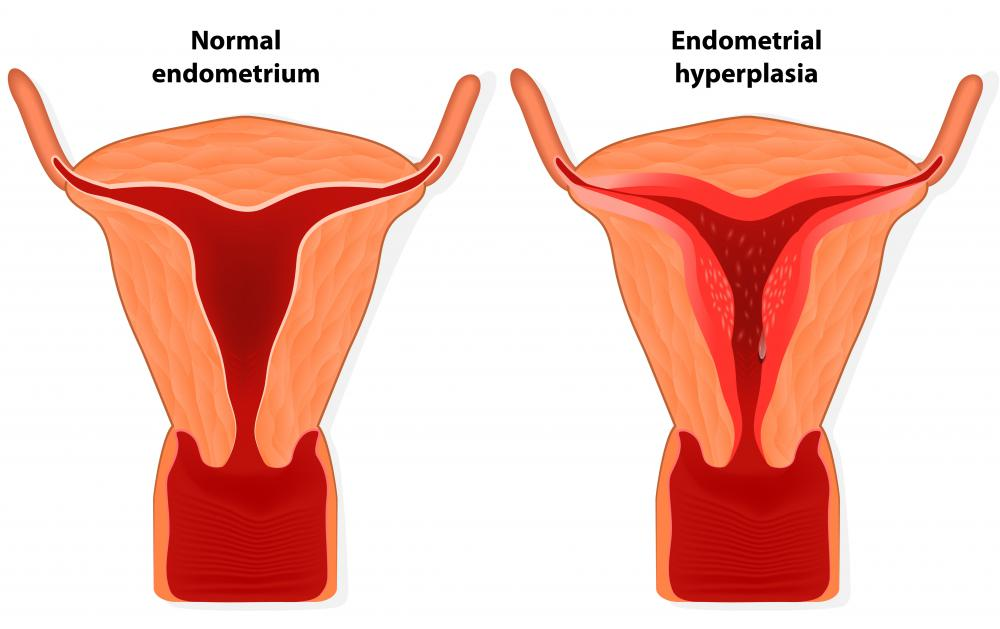 What Are the Common Causes of a Heavy Period with Clotting?