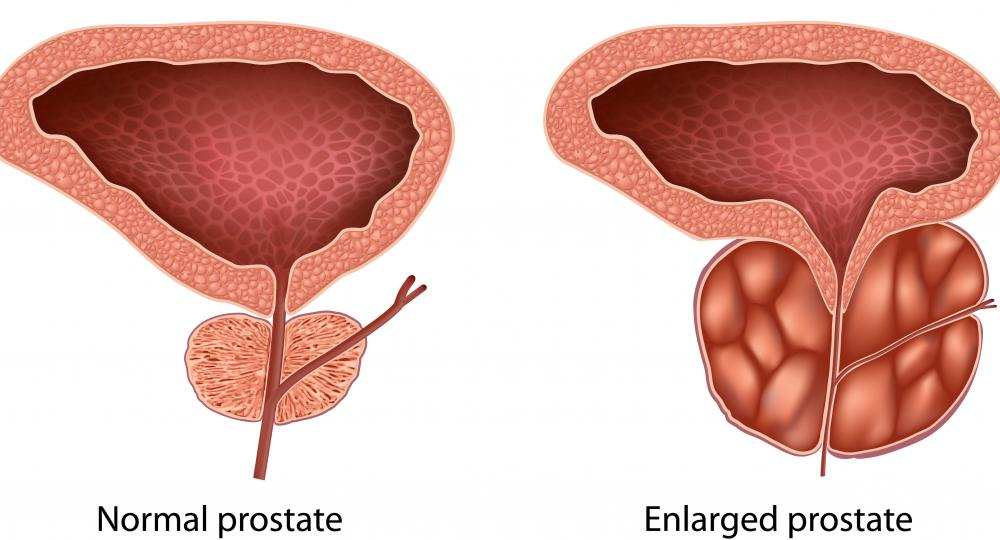There are several different types of prostate inflammation.