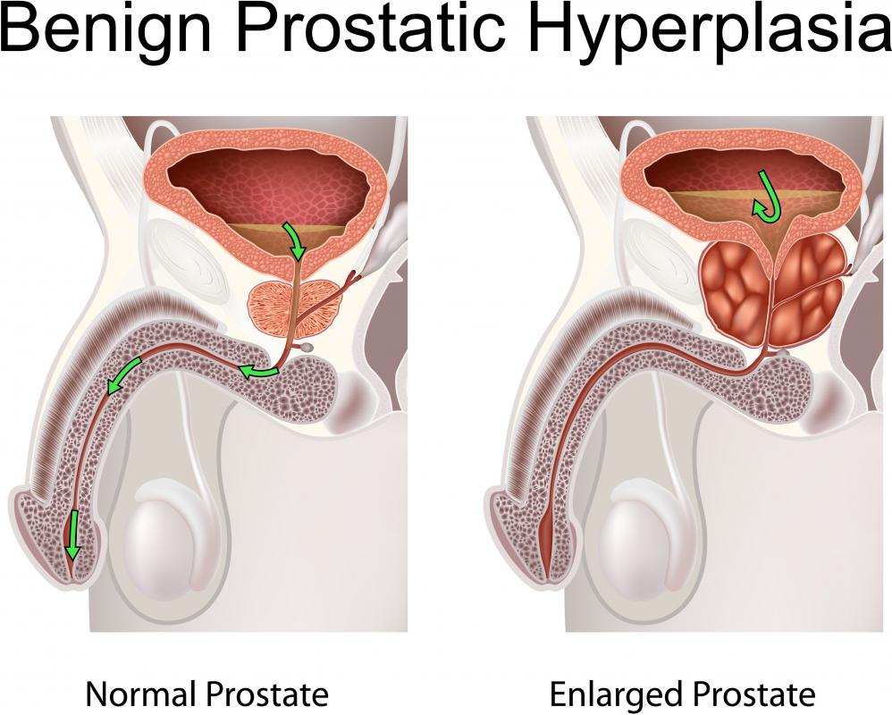 Benign prostatic hyperplasia may cause prostate swelling.