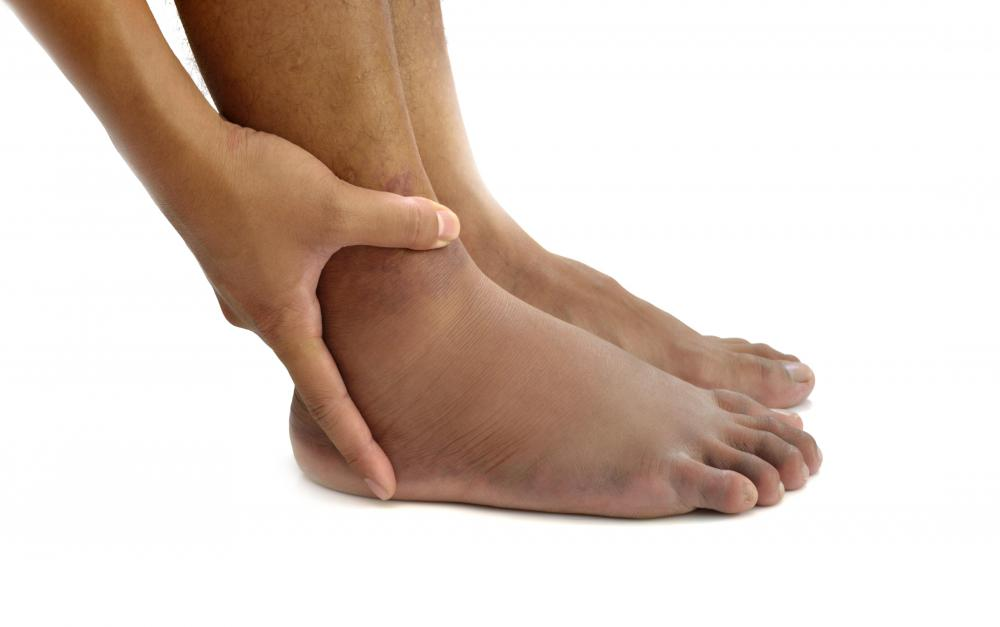 Foot injuries commonly cause swelling.