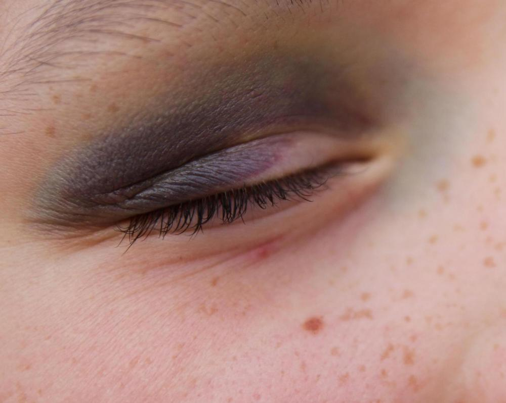 A bruised eye should be treated with ice immediately.