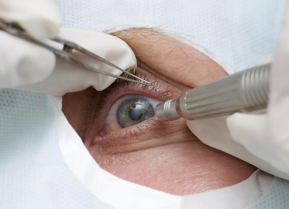 During cataract surgery, the lens of the eye is replaced with an intra-ocular lens implant.
