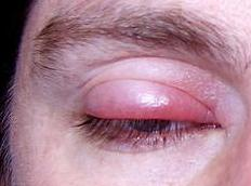 A person with a stye, the most common type of eye infection.