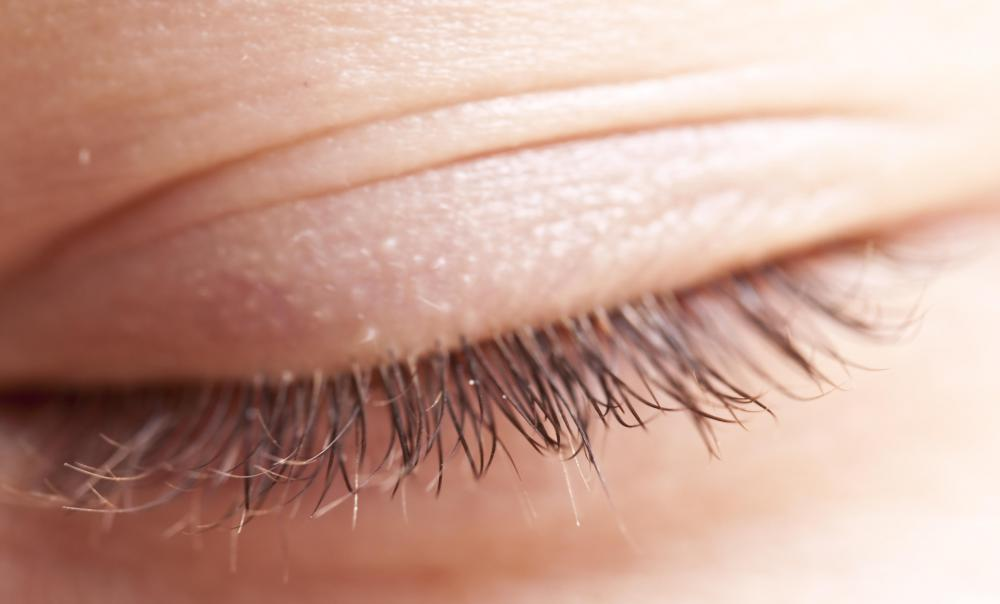 Some people get eyelash transplants in order to have thicker eyelashes.