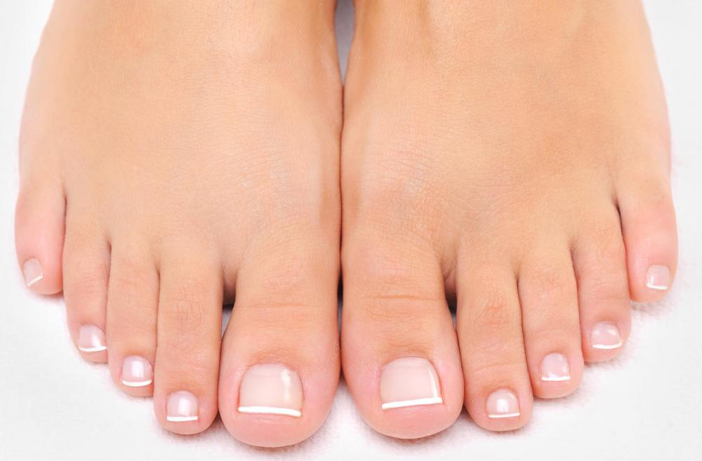Nail fungus is most common in the toenails.