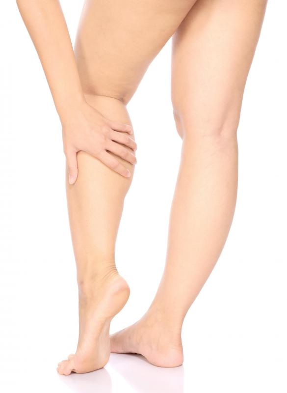 Claudication is very common in the calf and thigh areas.