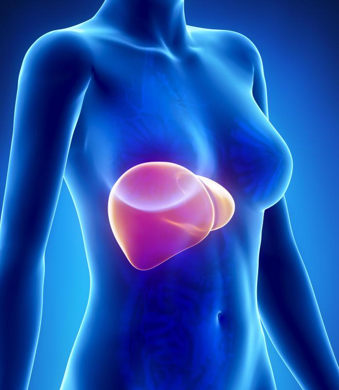 A content of more than 10 percent of the liver's total weight is considered fatty.
