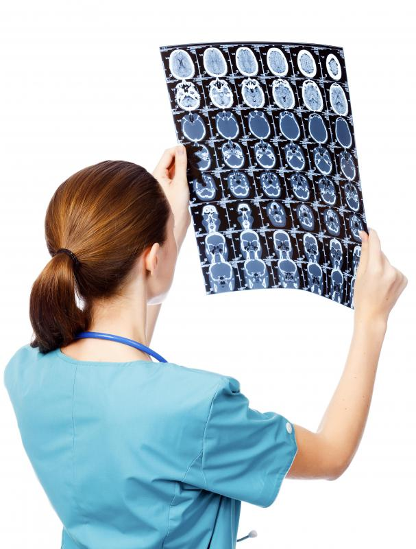 Physicians can consult neuroimages when planning a surgery.